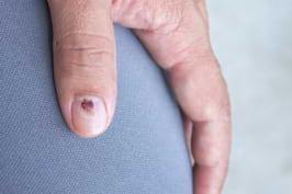 Alunitele sub unghie –  factor de risc pentru melanom?