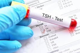 Totul despre TSH - cand indica aceasta analiza probleme ale glandei tiroide