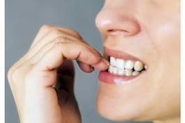 Roaderea unghiilor sau onicofagia: cum sa renunti la acest obicei
