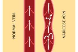 Diagnosticul insuficientei venoase cronice