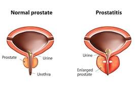 Hiperplazia benigna de prostata sau marirea prostatei