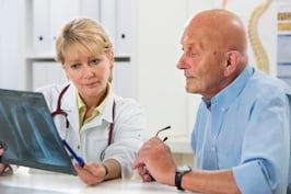 Cele mai comune mituri despre cancerul pulmonar, demontate