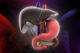 Steatoza hepatică sau ficatul gras