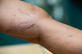 Tipuri de vene varicoase: cum le deosebesti