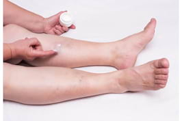 Tratamente neinvazive si minim-invazive pentru varice