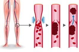 Totul despre tromboza: Simptome, Tipuri & Tratament | Doc.ro