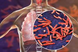 Tuberculoza (TBC) - Ce este, Simptome si Tratament