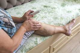 Varicele: durerea si senzatia de picioare grele