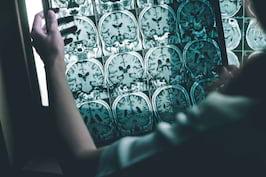 Bariera hematoencefalică ar putea avea un rol important în boala Alzheimer