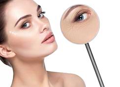 Ce impact are stresul oxidativ asupra procesului natural de îmbătrânire a pielii