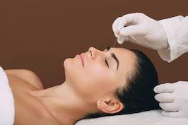 Acupunctura reduce durerile de cap asociate cu migrena [studiu]
