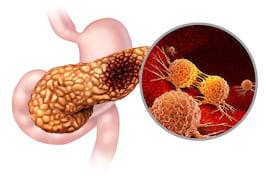 Metastaza cancerului de pancreas ar putea fi prevenită [studiu]