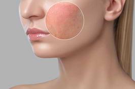 Soluții eficiente pentru porii dilatați, pustule și roșeață