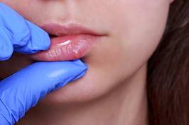 Cancerul la buze: cauze, simptome, tratament