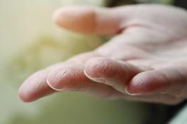 Cum tratăm pielea uscată?
