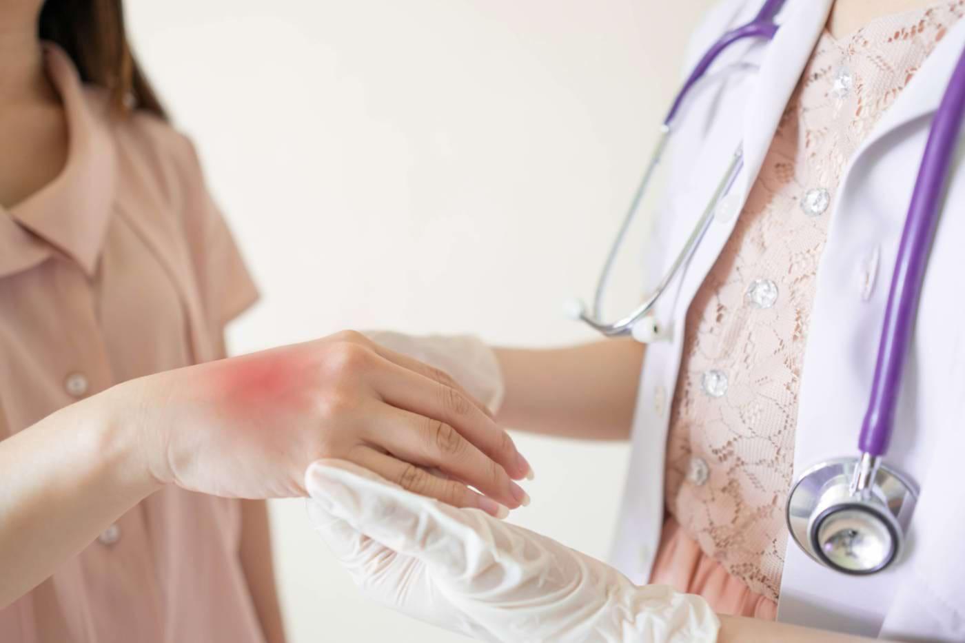 10 tipuri de iritații care apar în colita ulcerativă