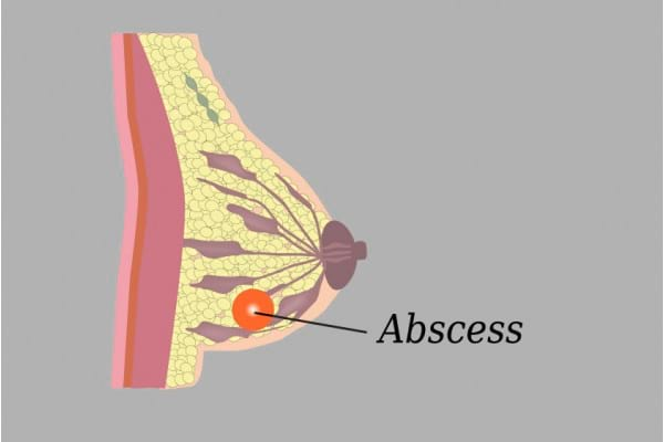 Abcesul mamar: ce este si cum il deosebesti de cancerul mamar inflamator