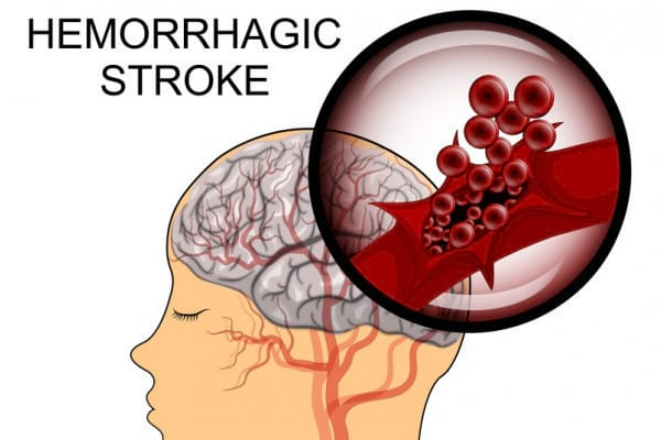 Accidentul vascular cerebral hemoragic: simptomatologie si debut