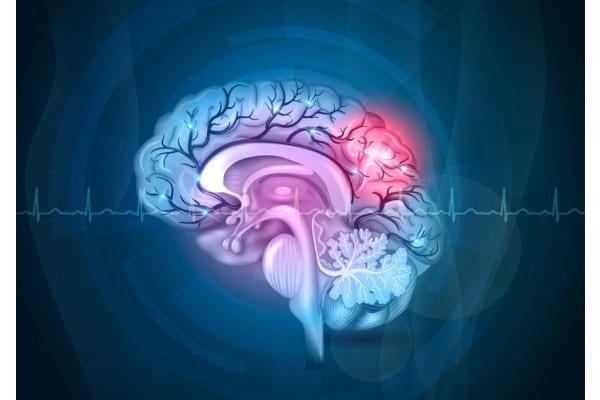 Ce trebuie sa stii despre accidentul vascular cerebral (AVC)