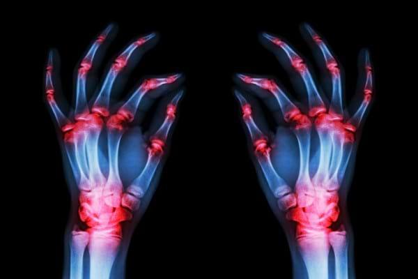 Actualitati in diagnosticul poliartritei reumatoide