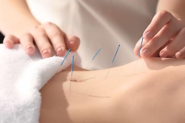 vedere acupunctură)