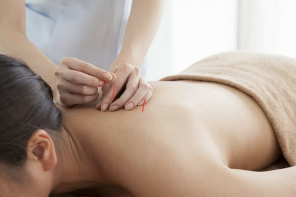 Acupunctura in cazul infertilitatii: functioneaza sau nu?