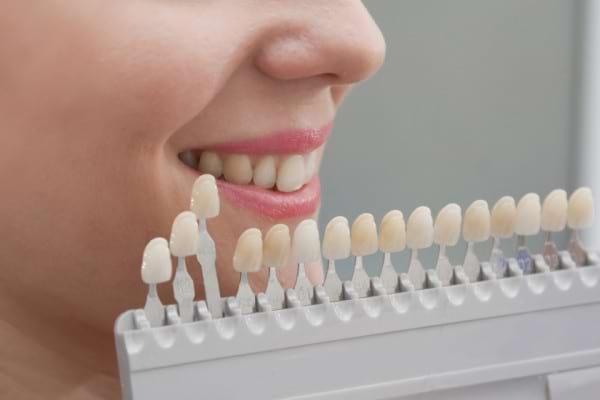 Alegerea culorii restaurărilor dentare: de ce este importantă și cum se realizează