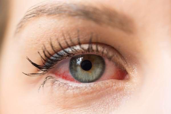 Alergii oculare: cum le previi si cum le tratezi