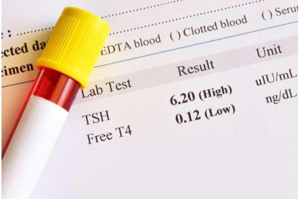 Analizele de sange pentru activitatea glandei tiroide