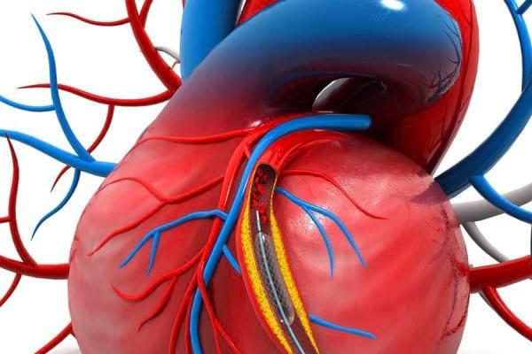 Ce este angioplastia coronariana? Indicatii, tehnica si tipuri de stenturi