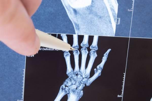 artrita juvenila idiopatica se vindeca