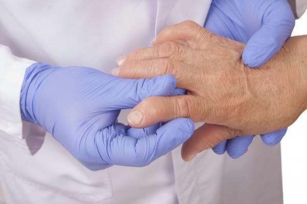 Artrita reumatoida precoce