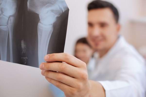 Afla totul despre artroza: Simptome, tipuri, diagnostic si tratament | experttraining.ro