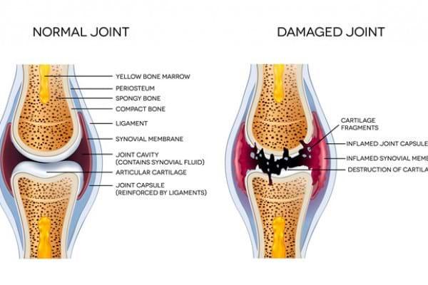 Aspectele anatomo-patologice în poliartrita reumatoidă