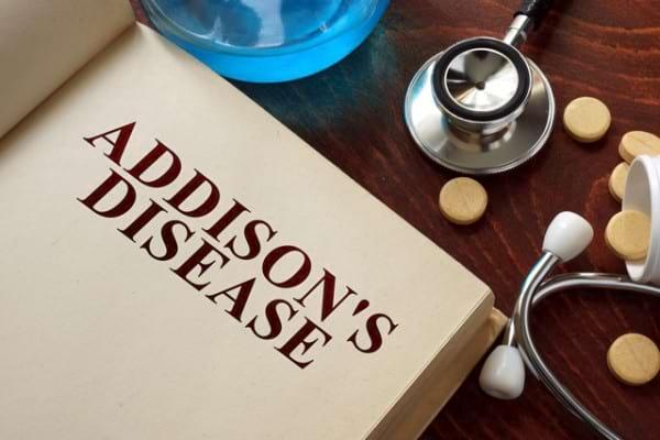 cum să pierdeți greutatea cu boala addison)