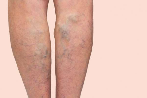 Boala venoasa cronica: simptome, factori de risc, clasificare