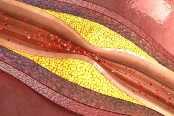 Bolile cardiovasculare nu afecteaza doar inima, ci intregul organism!