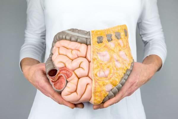 cancerul colonului cauze