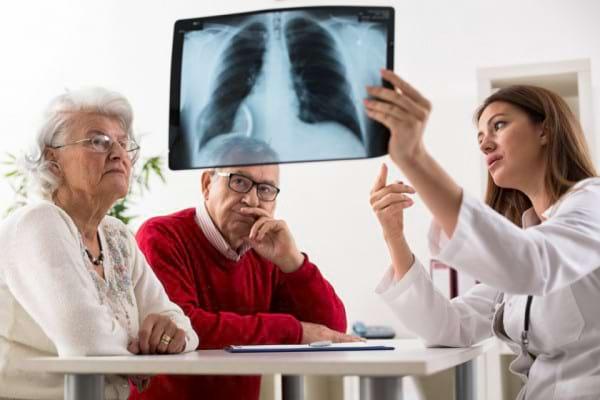 Cancerul pulmonar la femei vs barbati
