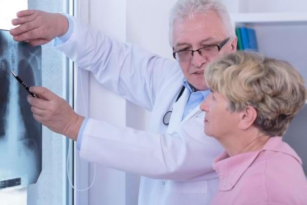 Cancerul pulmonar la femei, diferit fata de cel la barbati?
