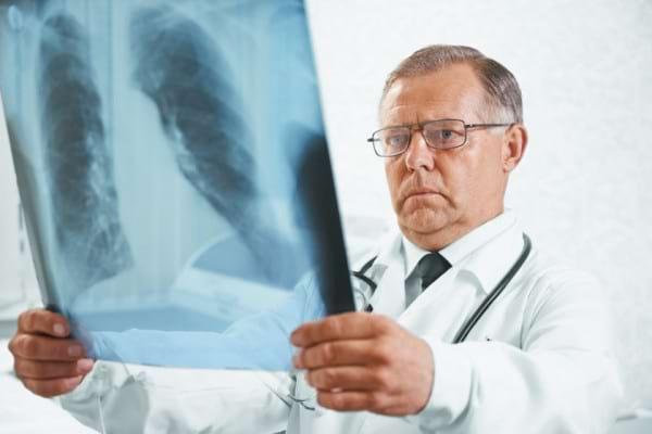 Cancerul la plamani declanseaza hipertensiune pulmonara
