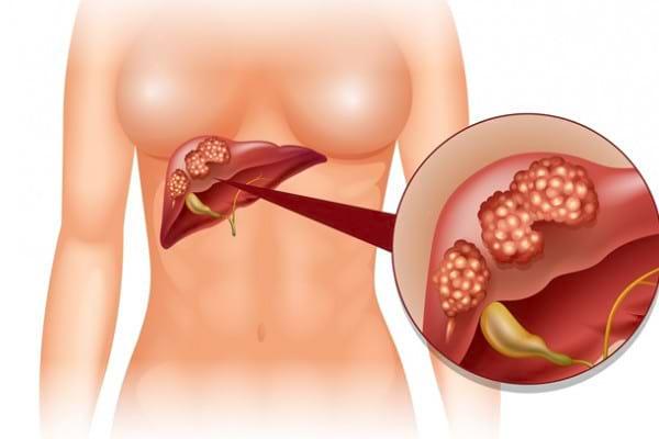 Cancerul de ficat (Hepatic): Simptome, cauze, tratament, preventie | in2constient.ro