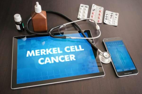 Carcinomul cu celule Merkel, un cancer cutanat rar dar agresiv