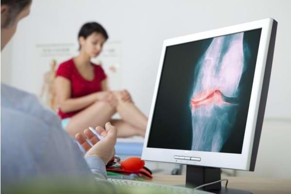 Simptome și diagnostic în artroză