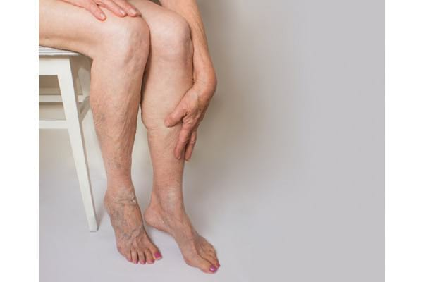 Cauzele si factorii de risc in insuficienta venoasa