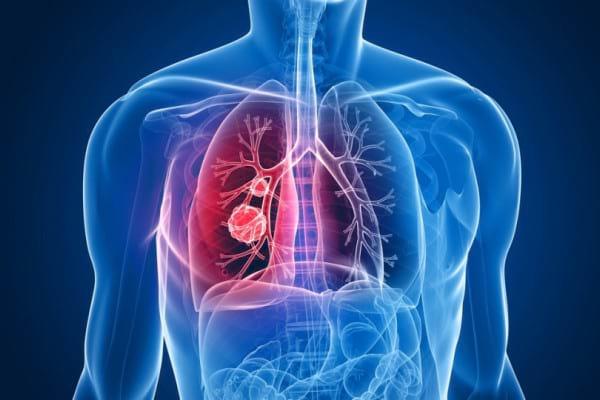 poate tumorile pulmonare benigne cauzează pierderea în greutate