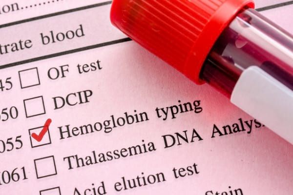 Hemoglobina: Ce este? Tipuri si Forme & Cauze