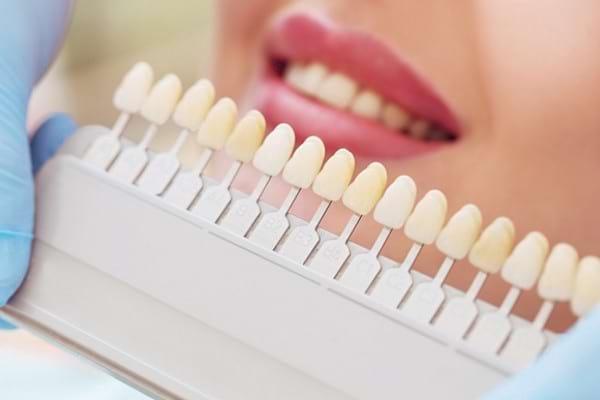 Ce presupune tratamentul de albire dentară și ce riscuri există