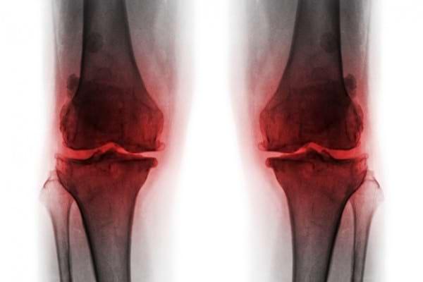 """""""Ciocurile"""" osoase sau osteofitele: cauze, simptome, tratament"""