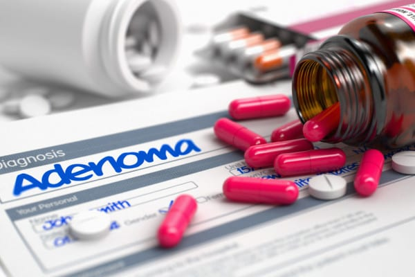 Complicatii ale adenomului de prostata: obstructie urinara si pietre la vezica